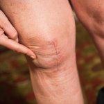 多吃膠質食物就能養出軟Q腳骨?4個讓人膝蓋中箭的膝關節迷思