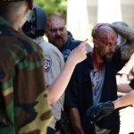 「納粹敢來,就讓他們倒!」加州州議會外示威發生流血衝突 多人被利刃刺傷