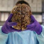 英國大腦銀行:這間銀行不存錢,存人死後48小時內送來的新鮮大腦
