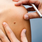 智慧醫療時代來臨?AI判斷皮膚癌準確率已高達95%,比皮膚科醫師還棒!