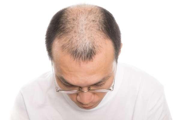 髮量稀少看起來比較老!讓頭髮愈長愈多的洗髮術,第一,別在早晨洗頭…