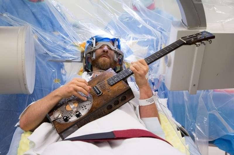 這位音樂家 Brad Carter,正在接受開顱手術,腦袋被打開了還在彈吉他。(圖/言人提供)