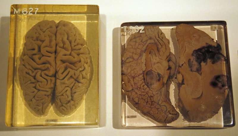 愛因斯坦大腦切片。(圖/言人提供)