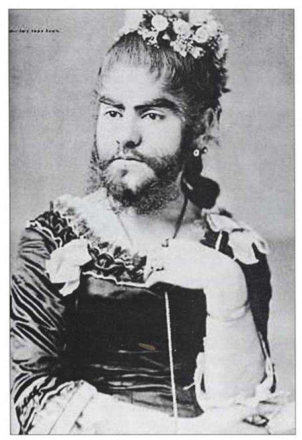 歷史上的鬍子女。(圖/澎湃新聞提供)