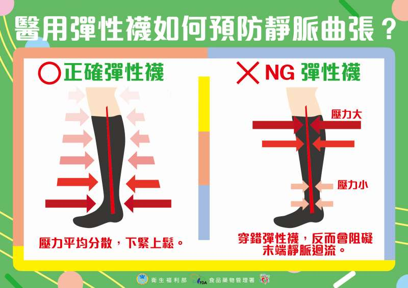 有些民眾會穿著彈性襪來預防腿部水腫或是減緩靜脈曲張症狀,但選購時容易混淆,認為越緊效果越好,反而讓血液更加滯留於腳部,造成下肢血液循環不好,導致組織缺氧,病情惡化,無法改善靜脈曲張。(圖/苗栗縣政府提供)