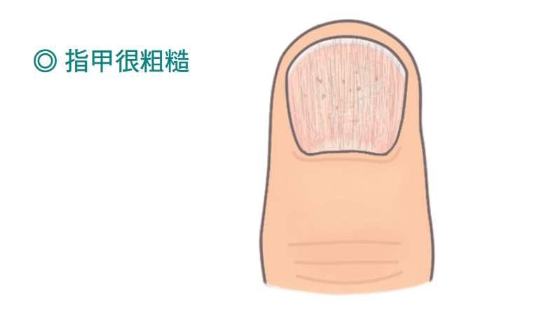 指甲表面有如砂紙般的粗糙,失去了透明的光澤,有時候不只是一片指甲,在嚴重情況下,甚至手腳全部指甲都遭殃。(圖/大塊文化提供)