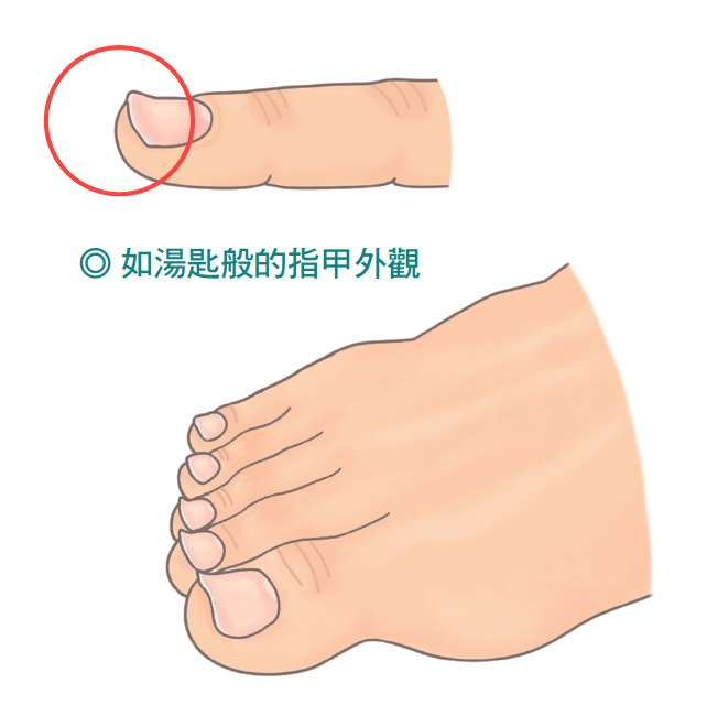 指甲向上彎,應該進一步抽血檢查,以確認貧血缺鐵的程度,找出病因,補充鐵劑,指甲就會逐漸恢復正常的形狀。(圖/大塊文化提供)