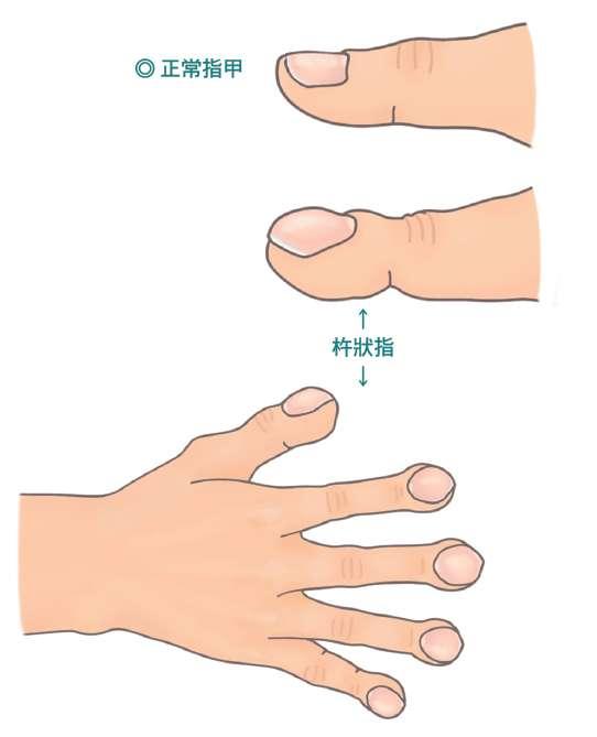 杵狀指的特徵,是末端指(趾)節明顯增寬增厚,指(趾)甲從根部到末端會呈拱形隆起。(圖/大塊文化提供)