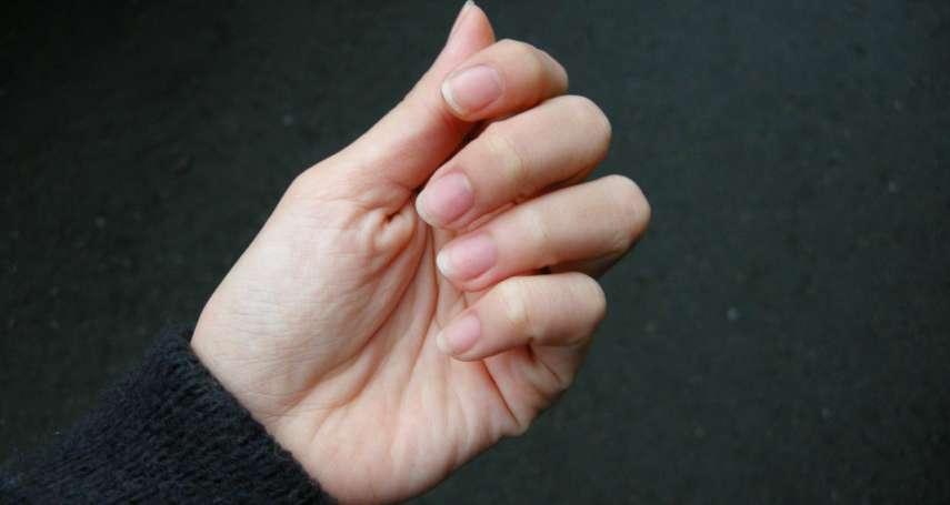 痛到叫媽媽的「甲溝炎」如何根治?首先,看這張圖檢視指甲剪對沒