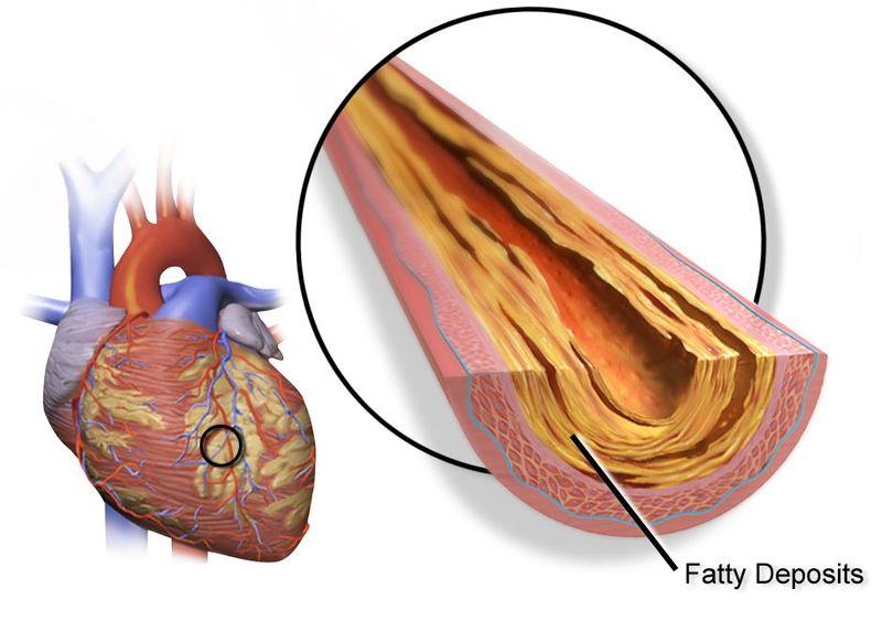 冠狀動脈心臟病(CAD,冠心病)