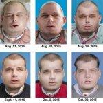 打火英雄「換臉」成功  美完成最大宗臉部移植手術