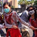 移工職災燙傷休養 台灣國際勞工協會:僱主惡意謊報逃跑逮人