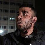 土耳其首都安卡拉大爆炸 至少37人死於恐怖攻擊