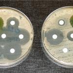 未來「超級細菌」每3秒殺死一名地球人 學者呼籲正視細菌抗藥性問題
