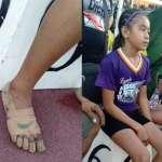 11歲女孩自製「繃帶NIKE鞋」拿3金 勵志故事感動人心:該給他終身贊助