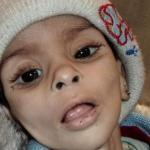敘利亞戰火漫天 難民活活餓死