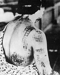 在爆炸中受到灼傷的女性。(圖/維基百科)