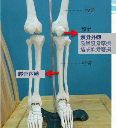 1-4髕骨、股骨、脛骨位置.jpg