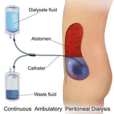 腹膜透析示意圖(圖/維基百科)