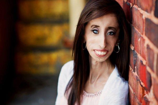 這位被嘲笑是「全世界最醜」的女人,做出了最漂亮的反擊!