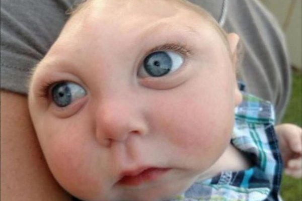 「醫生曾建議墮胎」 天生無腦畸形兒歡度1歲生日