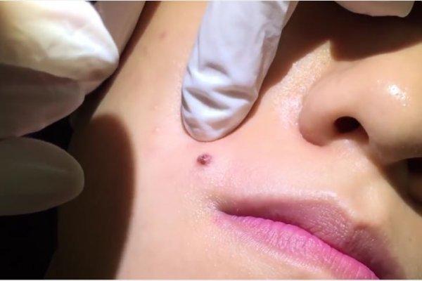 點痣筆好用嗎?專業醫師冷笑打臉造假廣告:自行使用美容家電背後隱藏的毀容風險…