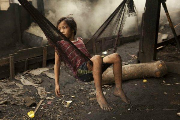世界癌症日》全世界每年880萬人死於癌症,中低收入國家是重災區