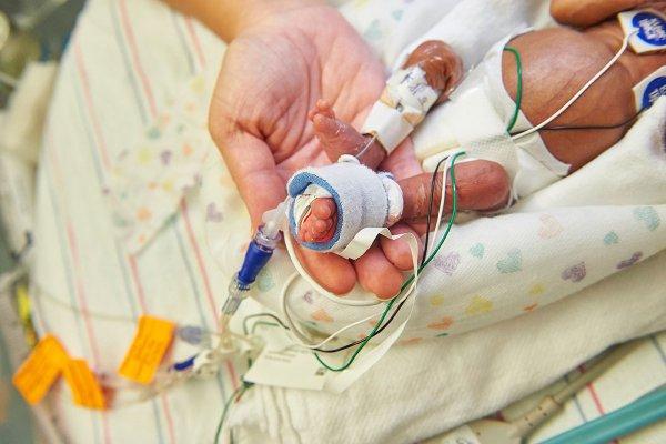 早產兒可望跟保溫箱說掰掰!美國研發人造體外子宮 8隻早產羊順利存活發育