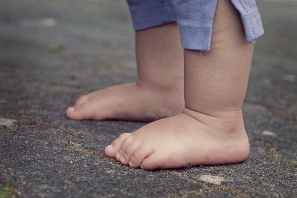 男童瘀青久不消,一檢查居然是染寄生蟲!醫師:「這裡」是蟲蟲基地,千萬別讓小孩赤腳去