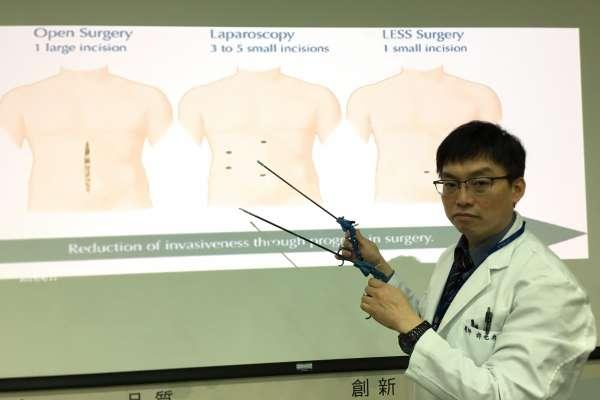 達文西機械手臂進行癌腹腔鏡微創手術 中榮突破三百例