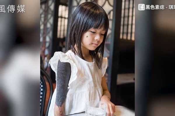 8歲女孩患黑色素痣5度植皮!家人陪伴是最大動力,自己穿壓力衣堅強對抗病魔!【影音】
