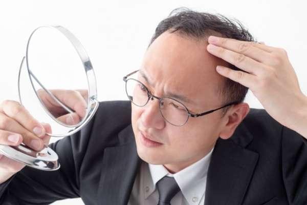 頭皮出油、頭髮變細是禿頭前兆?醫師教你超簡單「自我檢測法」,4大關鍵揪出掉髮危機