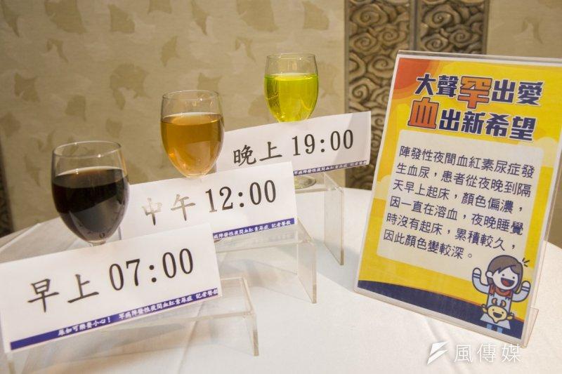 罕見疾病陣發性夜間血紅素尿症(PNH)患者晨起第一泡尿,常如可樂甚至紅葡萄酒般呈深紅色。(黃天如攝)