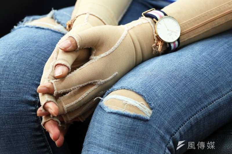 為了讓疤痕平整一點,重度燒燙傷患者在接受植皮等手術後,往往須依醫囑一天24小時穿著2到3年的壓力衣。(資料照,蘇仲泓攝)
