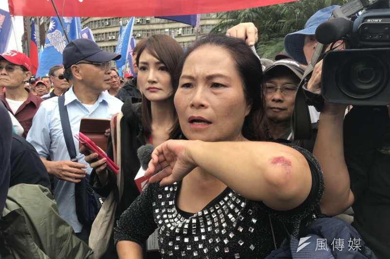反年改團體八百壯士於13日包圍行政院抗議軍人年改方案,一名參與婦女控訴自己被警方壓制在地上,手肘擦傷極深。(謝孟穎攝)