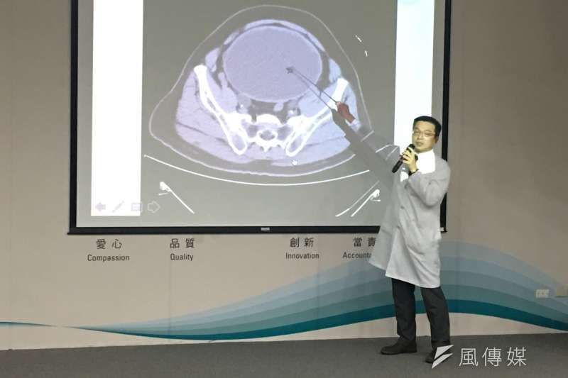 台中榮總醫院泌尿外科醫師陳正哲說明患者病例,因攝護腺肥大導致排尿問題,差一點引發尿毒症。(圖/王秀禾攝)