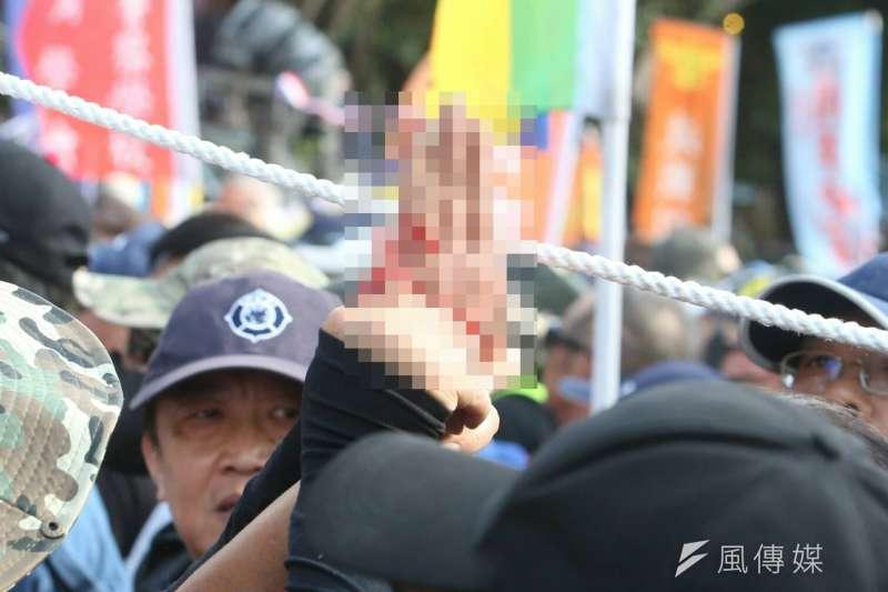 反年改團體25日與警察發生衝突並試圖闖入立院,有人於抗爭過程中斷指。(陳明仁攝)