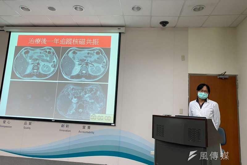 台中榮總醫院肝膽腸胃科醫師廖思嘉說明自體免疫性胰臟炎治療的癒候。(圖/王秀禾攝)