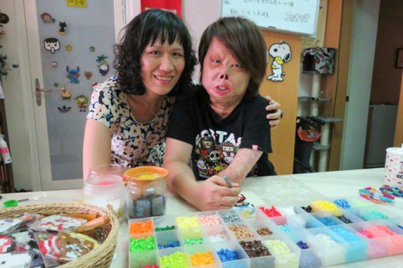車禍後,媽媽一路耐心陪著莊雅菁復健與手術。