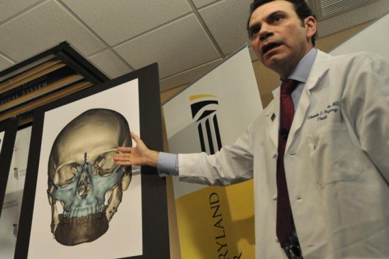 馬里蘭大學醫學中心在2012年完成的重大臉部重建手術,也是由羅德迪斯格醫生操刀。(美聯社)