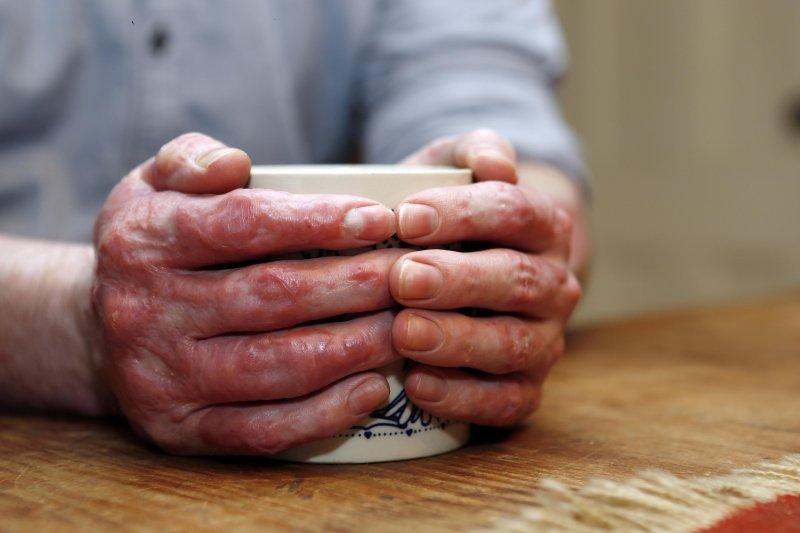 補腎 陰陽兩虛的中成藥 | 百分之一吋厚的皮膚,卻幫助無數八仙塵爆傷患⋯衛福部將設國家皮膚保存庫