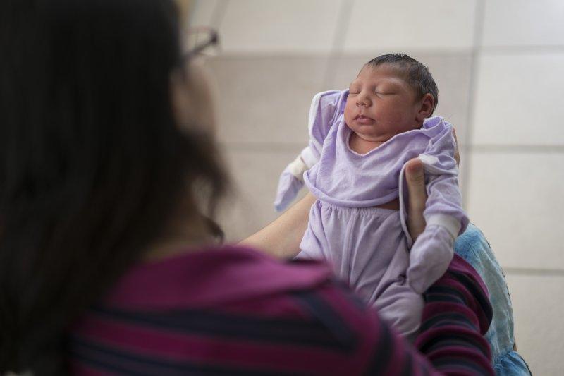 孕婦感染茲卡病毒,新生兒可能罹患「小頭畸形症」(microcephaly)(美聯社)