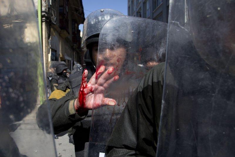 在警民衝突中受傷的玻利維亞警察。(美聯社)