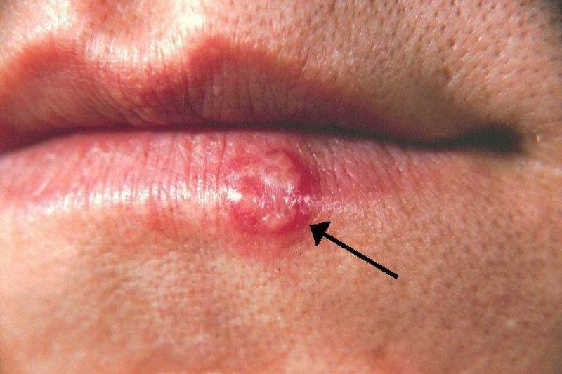 貝西氏症患者往往有口腔潰瘍症狀,很容易誤診為口角炎。(圖非當事人,截自維基百科)