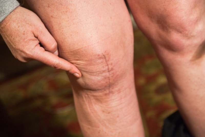 膝關節保養好,到老才不會時常犯風濕。(圖/c1.staticflickr.com)