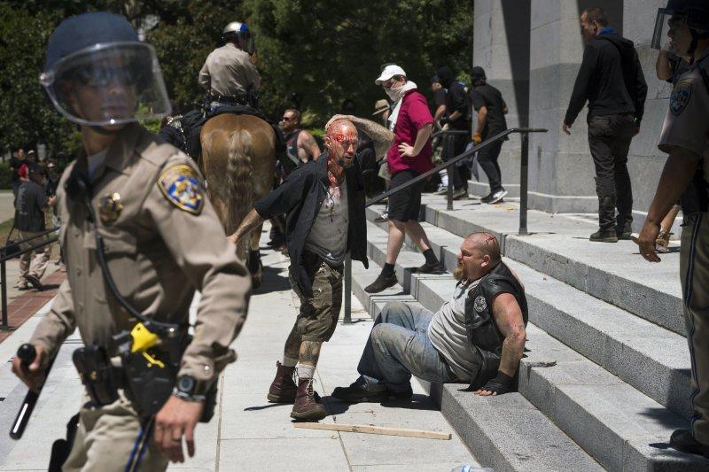 在加州州議會外的流血衝突後,兩位傷者在州議會的階梯上休息。(美聯社)