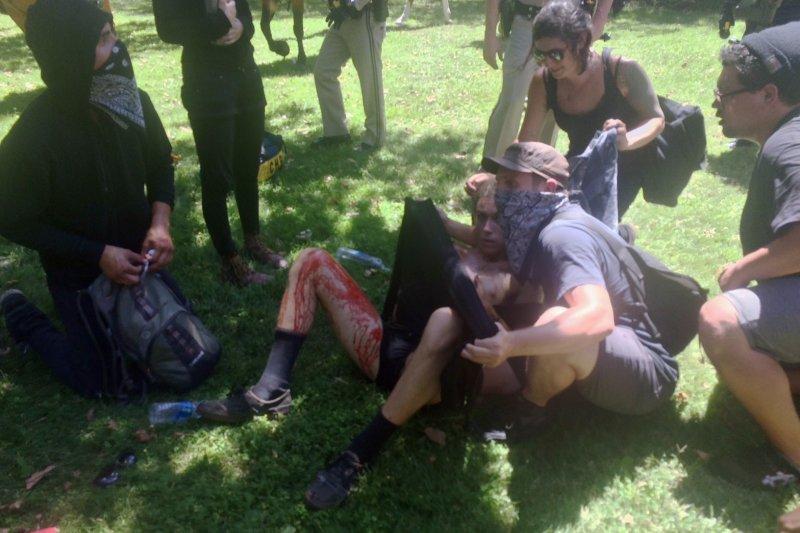 一位反法西斯的民眾滿身是血,倒在加州州議會外的草坪上。(美聯社)