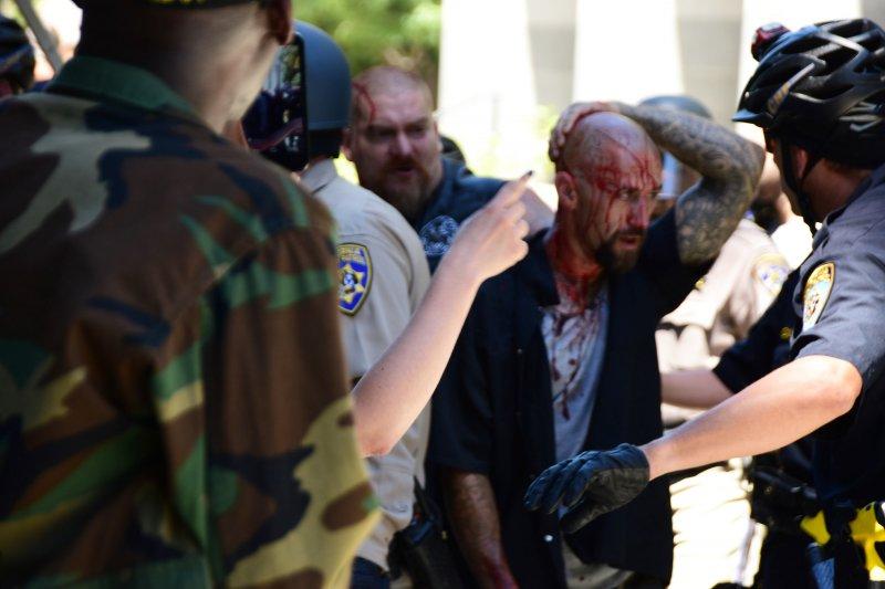 在加州州議會外的混戰後,警方護送一位滿頭是血的傷者離開。(美聯社)