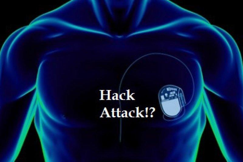 2016-07-12-巴納比-傑克攻擊心律調整器-取自巴納比臉書