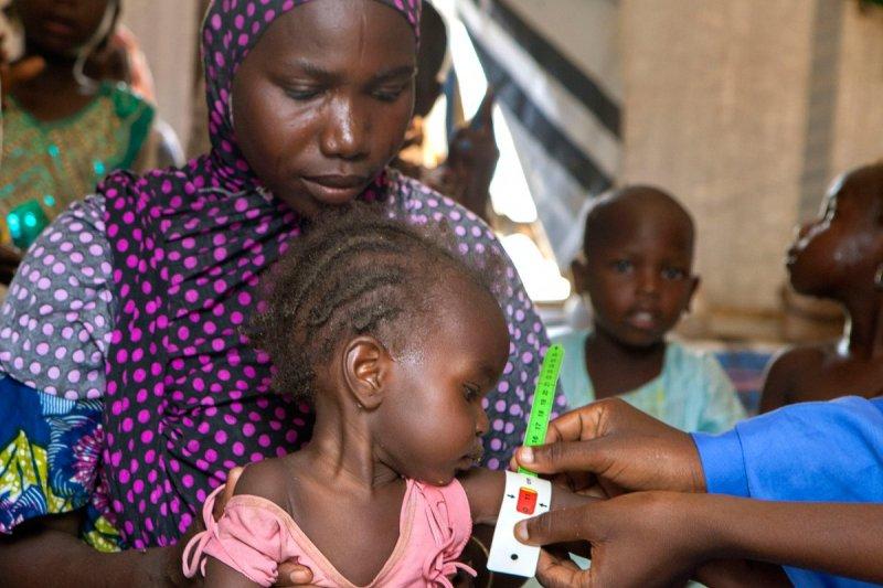 一位奈及利亞的小女孩因為營養不良,正在聯合國的臨時醫院裡接受檢查。(聯合國兒童基金會)